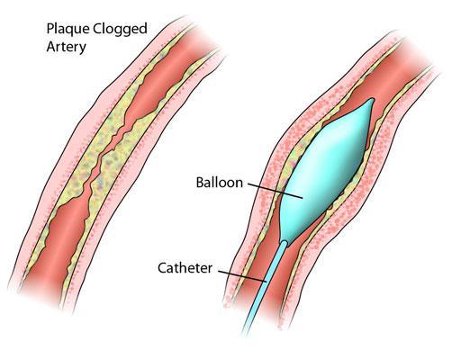 stent.jpg